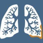Asbestos History Timeline 1947